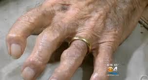 pawn shop wedding rings fla stole wedding ring wwii vet s finger sheriff ny