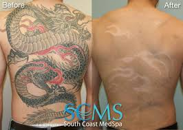 how are tattoos removed tattoo collections