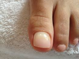 dental implants for your toenail fungus foot doctor the