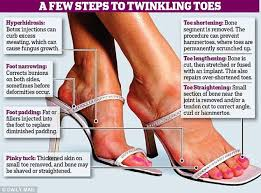 Comfortable High Heels For Bunions Off With Her Pinky How High Heel Obsessed Women Are Removing
