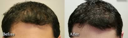 low level light therapy hair hair growth treatments limmer hair transplant center