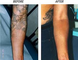 the risk of having tattoo laser removal in arm inofashionstyle com