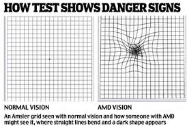 Does Macular Degeneration Always Lead To Blindness Grandfather 71 Left Blind In One Eye After Optician A Gp And