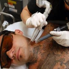 tattoo laser removal modern tattoos removal machine laser