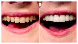 a complete overview of press on veneers by brighter image lab