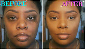 how to colour in a scar in your hairline how to color correct conceal dark circles acne scars