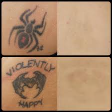 laser tattoo removal washington dc cosmetic skin institute