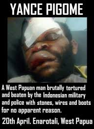 Indonesian Meme - west papuan man tortured by the indonesian military and police in