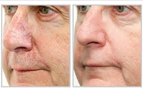 intense pulsed light therapy men benefit from our intense pulsed light therapy as well ipl helps