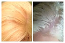 clairol shimmer lights before and after before and after using clairol shimmer lights i left it on for 10