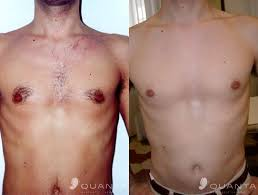 how much does laser hair removal cost on back laser hair removal chest reflections medical