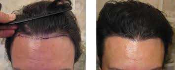 hair transplant month by month pictures before after photos male patients hair restoration san diego