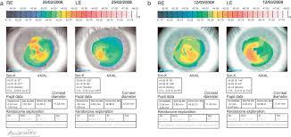 Map Dot Dystrophy Fingerprint Microcystic Dystrophy Episodes Of Irregular