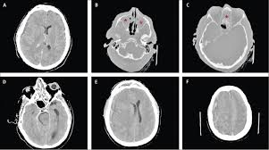 subdural empyema and other suppurative complications of paranasal