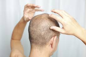 pure aloe vera u0026 hair loss livestrong com