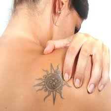laser tattoo removal in kent laser tattoo removal cost tunbridge
