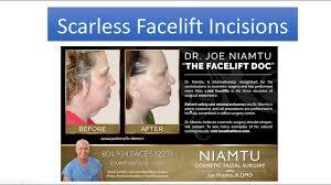 facelift richmond face lift neck lift richmond va cosmetic