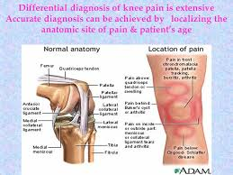 Anatomy Of Knee Injuries Knee Injuries Dr Abir Naguib Ppt Video Online Download