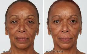 light treatment for skin led light treatment before and after gallery iderma youth