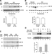 Sk Ii Sle differential expression and molecular associations of syk in
