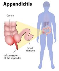 what side is your appendix on