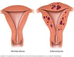 Interior Medical Term Adenomyosis Symptoms And Causes Mayo Clinic