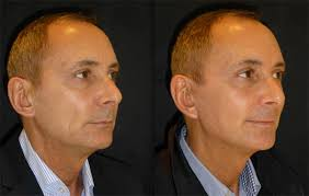 hairstyles that cover face lift scars men s facial surgery