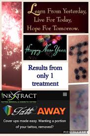 tattoo removal sunshine coast inkxtract home facebook