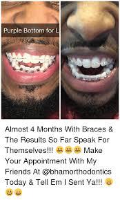 Braces Meme - 25 best memes about braces braces memes