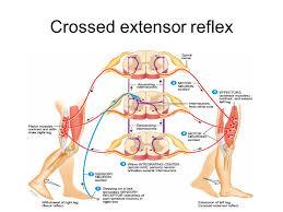 Pain Reflex Pathway Reflex Ppt Video Online Download