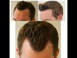 hair transplant america 31 best dr feroz khan from usa darling roots fue hair transplant