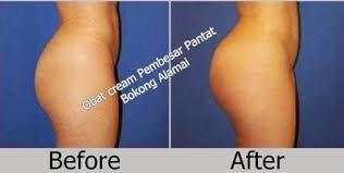 obat cream pembesar pantat bokong alami