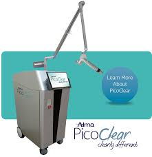 laser tattoo removal equipment alma lasers