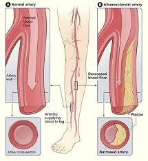 Foot Vascular Anatomy Vascular U0026 Endovascular Surgery Peripheral Artery Disease Pad