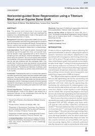 guided bone regeneration horizontal guided bone regeneration using a titanium mesh and an