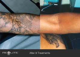 laser tattoo removal before and after 8 treatments laser