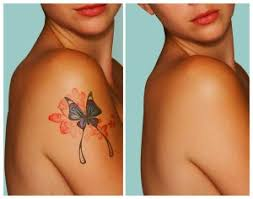 tattoo removal medspa serving rocky river oh