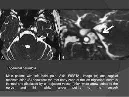 Sagittal Brain Mri Anatomy Cranial Nerves Anatomy U0026 Pathology