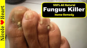 get rid of foot fungus toes quickly
