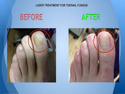 laser treatment for toenail fungus before and after photos