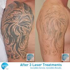100 tattoo removal after 3 treatments salabrasion step by