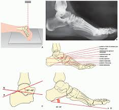 Collateral Ligaments Ankle Lower Limb Iii Ankle And Foot Radiology Key