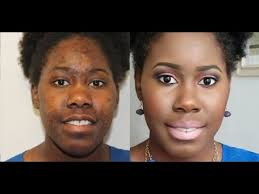how to cover dark spots and hyperpigmentation with omolewa makeup you