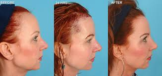 womans hair thinning on sides baldness remedies cures for hair loss with new transplant