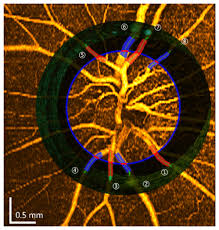 osa in vivo imaging of retinal hemodynamics with oct angiography