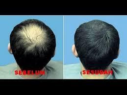 Membuat Minyak Kemiri Untuk Rambut Botak | menakjubkan 4 cara membuat minyak kemiri untuk rambut botak youtube