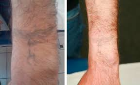 dealing with tattoos in plastic surgery tattoo removal