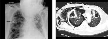 Radiology Of Thorax Chest X Ray A And Contrast Enhanced Computed Tomography Ct