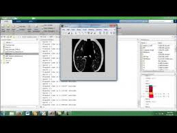 pattern classification projects lung pattern classification for interstitial lung diseases final