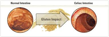 sai food products india gluten free food products wheat free